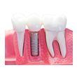 Implante dental en Sevilla
